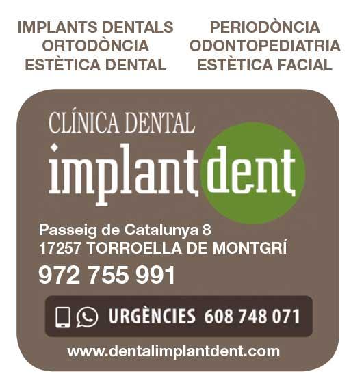 1-Implantdent